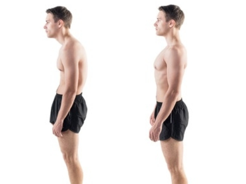 Rounded Shoulders - Ebrook Osteopathy and Sports Clinic